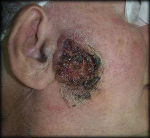 Basocellular carcinoma located in the preauricular area.