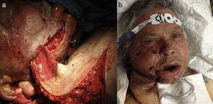 (a) Tubular deltopectoral flap in the subcutaneous pocket in the patient's cheek. (b) Image of the patient 72h after surgery.