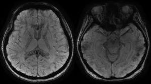 Brain MRI in magnetic susceptibility sequences. Multiple microbleeds can be seen that affect both the supra- and infra-tentorial compartments, located more superficially at the cortical-subcortical junction and deep, with more significant involvement, of the corpus callosum, internal capsules, and anterior white commissure. These findings suggest diffuse axonal injury.