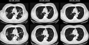 Coronal sequence at two levels of the chest CT scan before and after stem-cell therapy, showing normal conditions one month after cell therapy.