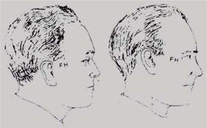 PFH en diferentes posiciones de la cabeza.