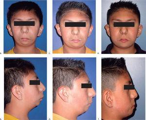 Fase inicial de tratamiento. Obsérvese las fascies características del Síndrome de Nager. 1b. Vista de perfil. 1c. Control postdistracción mandibular 1 año después. 1d. Vista de perfil 1 año después.1e. Control postdistracción mandibular 2 años después.1f. Vista de perfil 2 años después.