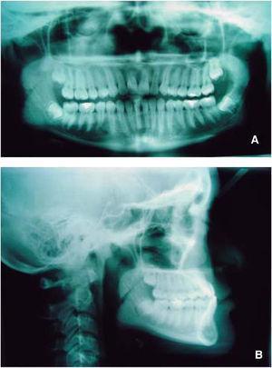 Radiografías de inicio del tratamiento: A. ortopantomografía, B. lateral de cráneo.