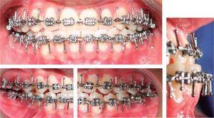 Fotos intraorales previas al procedimiento.