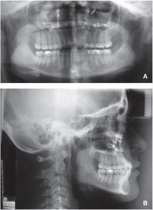 Radiografías finales: A. ortopantomografía, B. lateral de cráneo.