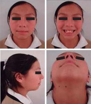 Fotografías faciales pretratamiento.