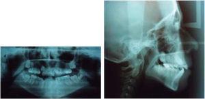 Radiografías panorámica y lateral de cráneo pretratamiento.