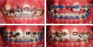 """Attaching accesories for traction of impacted teeht. A) Accesory arch 0.032"""" SS. B) Placing occlusal stops in order to avoid occlusal interference. C) Brace placing on the tooth to its correct level. D) Tooth in its final position."""