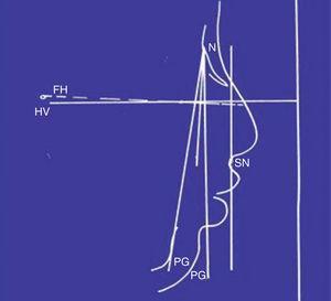 Cephalometric tracing.