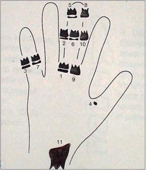 Indicators for bone maturity.