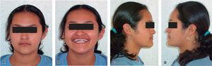 Extraoral photographs: A. frontal, B. smile, C. and D. right and left profile.