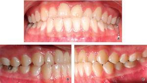 Intraoral photographs: A. frontal view, B. right view, C. left view.