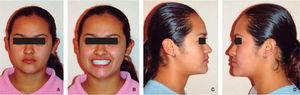 Final extraoral photographs: A. frontal view, B. smile, C. y D. right and left profile.