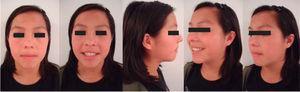 Postreatment facial photographs.