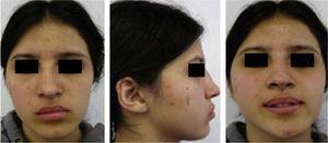 Fotografías extraorales; frontal, perfil derecho y sonrisa.