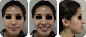 Fotografías extraorales finales; frontales, sonrisa y perfil derecho.