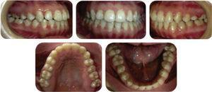 Fotografías intraorales finales; frontal, laterales y oclusales finales.