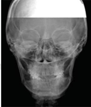 Radiografía posteroanterior de inicio. Obsérvese el colapso trasversal del maxilar.