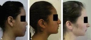 Fotografías de biotipos faciales: A. Dolicofacial, B. Mesofacial, y C. Braquifacial. Fuente: Directa.