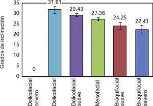 Promedio de Inclinación del Incisivo inferior en cada subgrupo de biotipo facial. Fuente: Directa.
