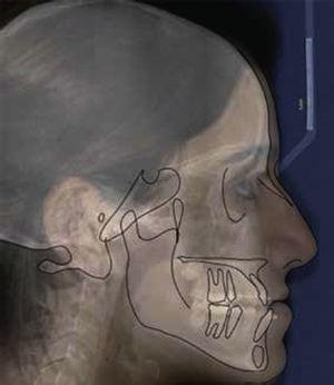1:1 ratio of the clinical image, the lateral cephalogram and the tracing format of the bony structures and facial contour.