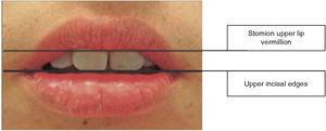 Localization of anatomical points for extraoral measurements.