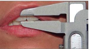 Measurement obtained with a caliper of several anatomical points for extraoral measurements.