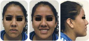 Facial photographs: frontal, smile and profile.