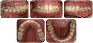 Final intraoral photographs.