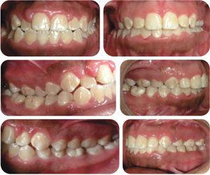 Initial and final intraoral photographs.