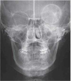 Initial posteroanterior radiograph where the mild maxillary collapse may be noted.