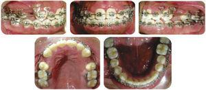 """Seven months in treatment. 0.019"""" x 0.025"""" DKHL stainless steel arch wires."""