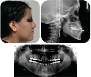 Presurgical facial profile photograph, lateral headfilm and panoramic radiograph.
