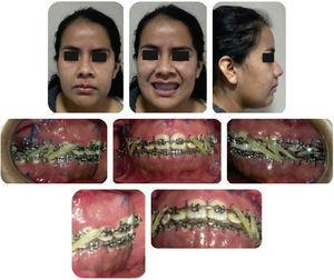 Facial photographs of the patient 7 days after the surgery.