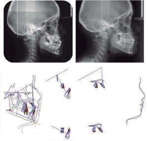 Comparación de las radiografías laterales de cráneo inicial y final, sobreimposición cefalométrica.