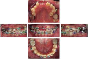 Fotografías intraorales posterior a la colocación quirúrgica del botón en el OD 11.