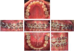 Fotografías intraorales posterior a la extracción de OD 73.