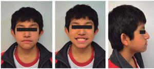 Initial facial photographs.