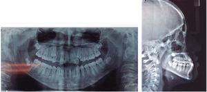Initial radiographs. Orthopantomography and lateral headfilm.