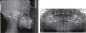 Final radiographs: panoramic and lateral headfilm.