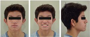 Final facial photographs.