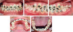 Fotos intraorales. A. Frontal. B. Lateral derecha. C. Lateral izquierda. D. Oclusal superior. E. Oclusal inferior.