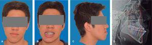 Fotos extraorales prequirúrgicas. A. Frontal. B. Sonrisa. C. Perfil derecho. D. Rx lateral de cráneo prequirúrgica.
