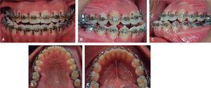 Fotos intraorales prequirúrgicas. A. Frontal. B. Lateral derecha. C. Lateral izquierda. D. Oclusal superior. E. Oclusal inferior.