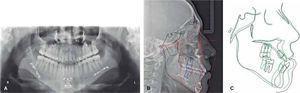 Evaluación final. A. Rx panorámica final. B. Rx lateral de cráneo final. C. Superimposición.