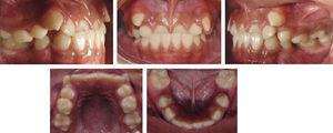 Initial intraoral photographs.