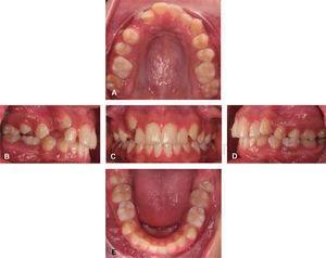 Fotografías intraorales. A. Oclusal superior. B. Lateral derecha. C. Frontal. D. Lateral izquierda. E. Oclusal inferior.