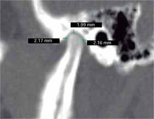 Medidas intraarticulares corte sagital izquierdo espacio anterior 2.17 mm, superior 1.99 mm, posterior de 2.16 mm. No hay diferencias significativas.