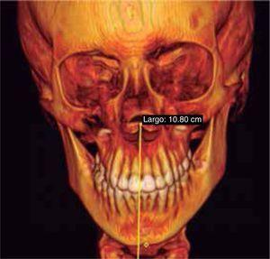 Reconstrucción 3D, tejidos óseos.