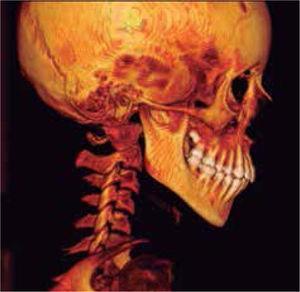 Reconstrucción 3D de tejidos óseos, corte sagital derecho e izquierdo.